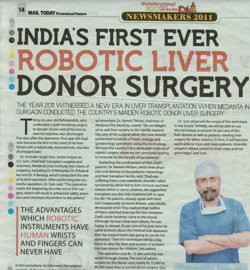 India's first Robotic Liver Surgery