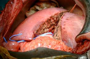 Donor liver after division