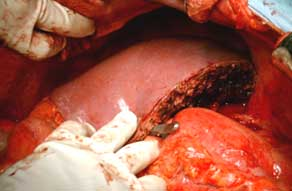 Normal looking liver after transplantation into recipient
