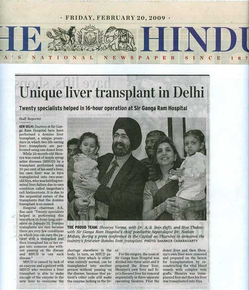 Unique liver transplant in Delhi