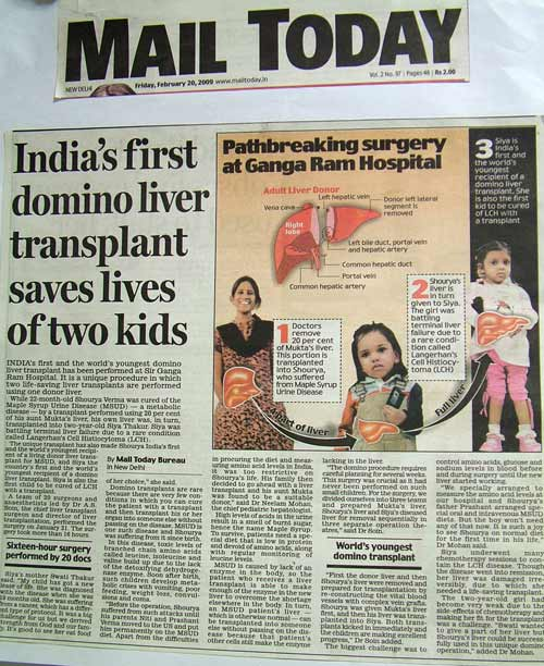 India's First domino liver transplant saves lives of two kids